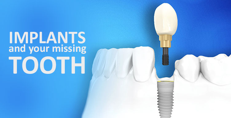 Implants and your Missing Tooth